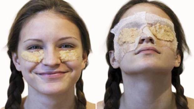 potato-dark-eyes-remedie